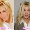 1o Most Terrible Celebrity Plastic Surgery Disasters