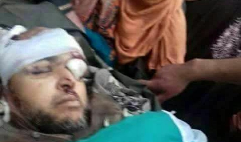 Indian troops continue state terrorism in occupied Kashmir, martyred a three feet tall Kashmiri Noor Mohammad Trantray