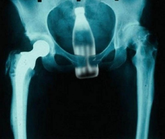 What Should i Extract From This X-Ray