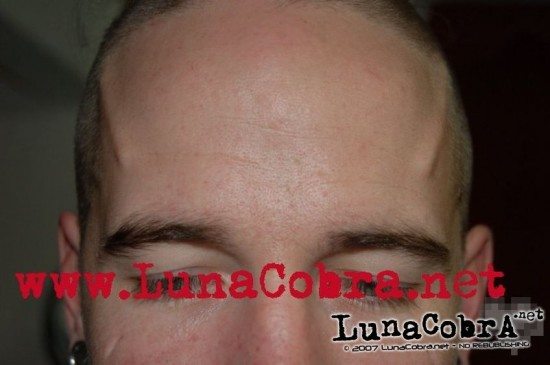 Forehead Ridges