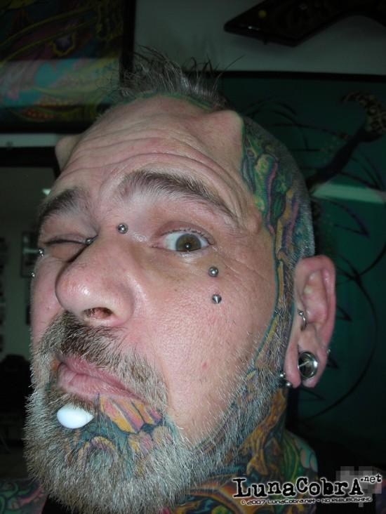 Hornz Implants